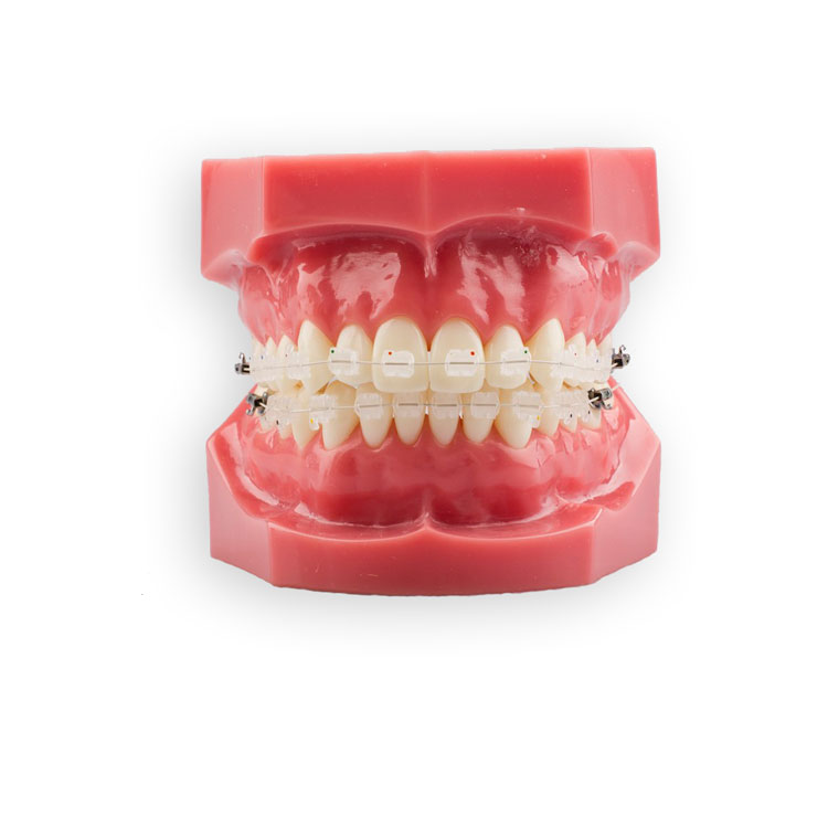 Ceramic Bracket Patient Kit